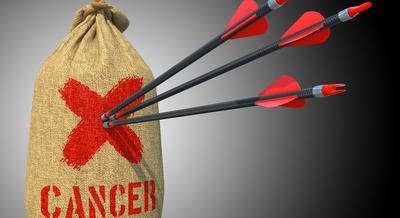 Kinél és miért végezhetnek rákmegelőző jelleggel emlőeltávolító műtétet?